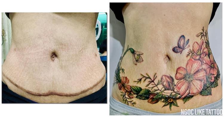 Cicatrice Cover Up Tattoos par Ngoc Like Tattoo