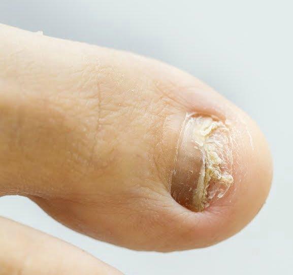 Remèdes à la maison pour la mycose des ongles